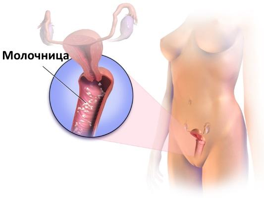 Коричневые выделения при беременности на ранних сроках без болей, с болью - причины