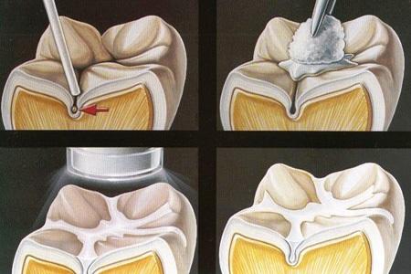 Белые пятна на зубах у ребенка. Причины и что делать, как избавится от пятен после отбеливания, брекетов, чистки, полосок