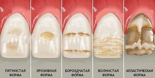 Белые пятна на зубах у ребенка 1-2 года, 7-9 лет. Причины и что делать, как избавится после отбеливания, брекетов, чистки, полосок, лечения зуба