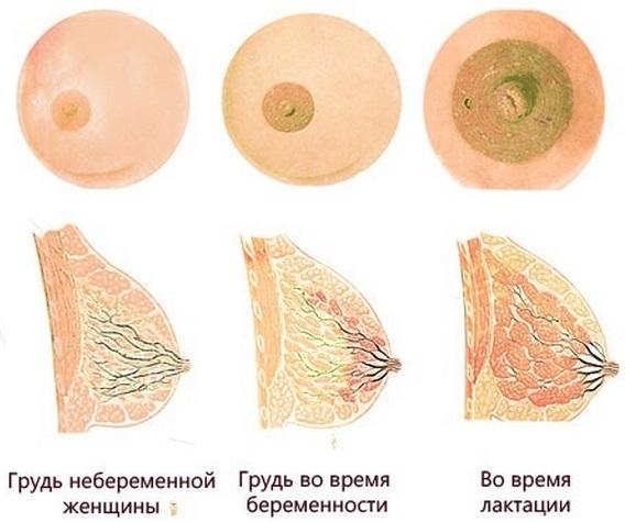 Как болит грудь при беременности на ранних сроках, во втором, третьем триместре. Когда начинает, перестает, как меняются железы