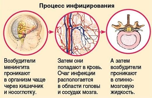 Лекарства от рвоты и тошноты для детей при отравлении, боли в желудке, поносе. Препараты и народные средства лечения ребенка в домашних условиях