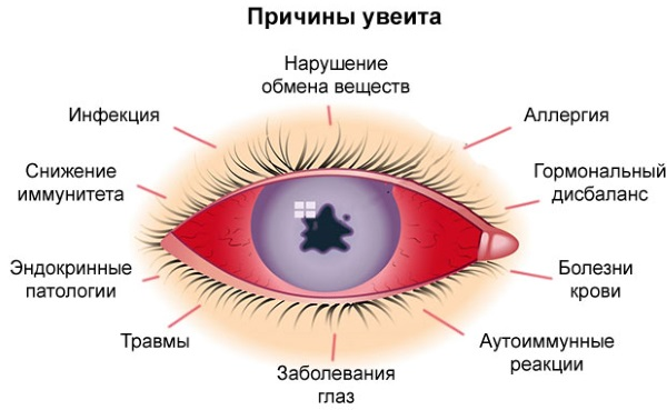 Покраснение глаз у ребенка. Причины и лечение при простуде, ОРВИ, температуре, аллергии. Капли и народные средства