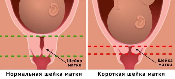 Тянет живот на ранних сроках беременности, как при месячных, до задержки, ноет в пояснице, с выделениями и без. Что делать?
