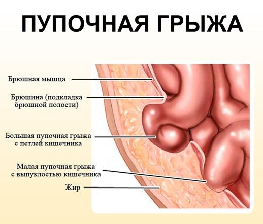 Диастаз после родов - что это. Упражнения при диастазе прямых мышц живота, симптомы и признаки, как определить, лечить