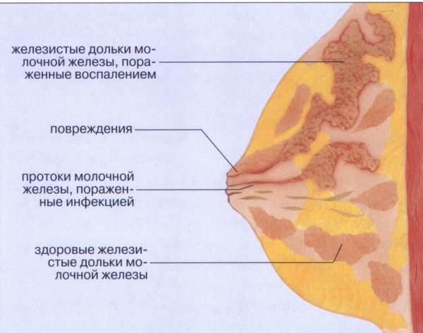 Лактостаз у кормящей матери: симптомы и лечение с температурой и без в домашних условиях