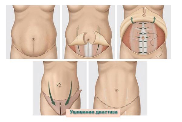 Диастаз после родов - что это, как определить, симптомы, лечение, как устранить, упражнения гимнастики, физиотерапевтические процедуры и операция