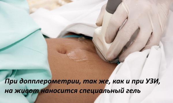 Допплерометрия при беременности - что это такое, расшифровка УЗИ плода, показатели, норма сосудов матки, маточных артерий. Таблица по неделям