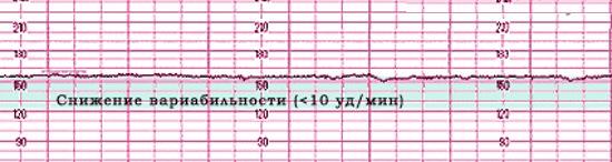КТГ при беременности: что это, норма, что показывает, расшифровка, когда и сколько делают, как подготовиться