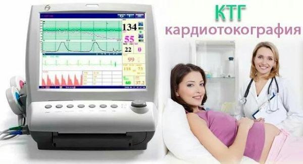 Что такое КТГ при беременности, когда назначают, когда делают, как подготовиться к КТГ и норма КТГ при беременности