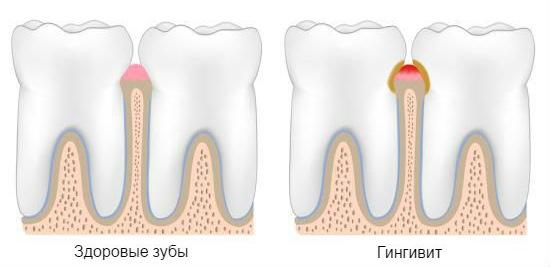 Лечение зубов во время беременности в 1, 2, 3 триместре. Делают ли рентген, анестезию, когда лучше лечить