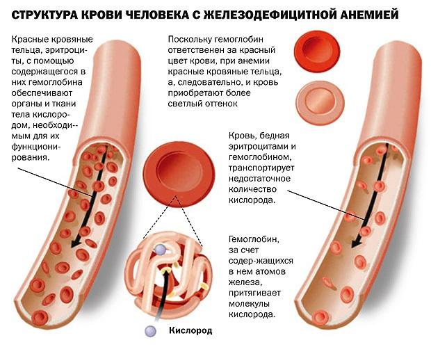 Слоятся ногти на руках у ребенка. Причины и лечение: препараты, народными средствами, витамины, диета