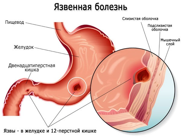 Курантил при беременности. Показания, инструкция по применению, побочные действия, противопоказания, аналоги