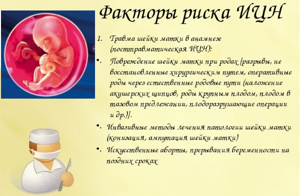 ИЦН при беременности. Что это такое, симптомы, лечение, диагноз, коррекция, профилактика, как предотвратить