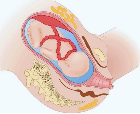 Обвитие пуповиной вокруг шеи плода 1 раз, двойное, тройное. Причины и последствия, как распознать, что делать
