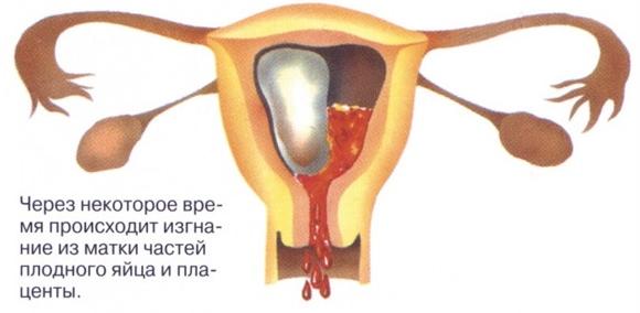 Симптомы беременности на ранних сроках в первые дни, до задержки, по неделям. Признаки внематочной, замершей, выкидыша