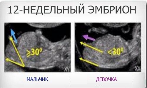 Беременность девочкой и мальчиком