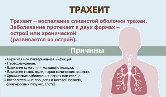 Чем лечить трахеит у ребенка. Симптомы. Антибиотики, ингаляции, сиропы, народные средства