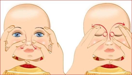 Дакриоцистит у новорожденных. Лечение, симптомы, острый, хронический, врожденный. Причины