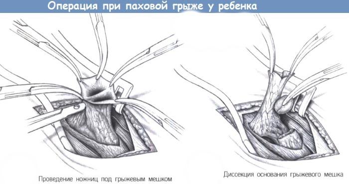 Паховая грыжа у ребенка. Фото 1, 2, 3 года, 5 лет. Лечение народными средствами, операция