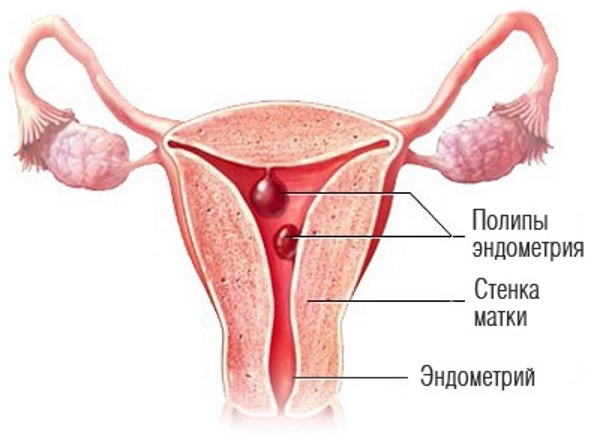 Двурогая матка и беременность. Что это такое, причины у женщин, как выглядит, что значит, плохо ли, можно ли забеременеть
