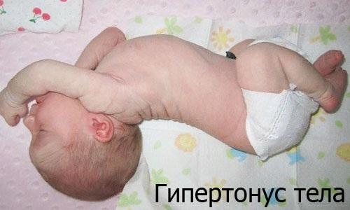 Гипертонус мышц у грудничков. Что это, симптомы и лечение, массаж ног, лица, шеи, спины