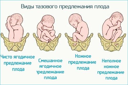 Гипоксия плода. Что это такое, симптомы, последствия для ребенка. Причины, хроническая, острая формы