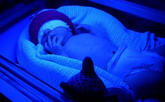 Лампа от желтушки для новорожденного. Какую лучше купить, взять напрокат, как пользоваться, сколько лежать под ультрафиолетовой лампой
