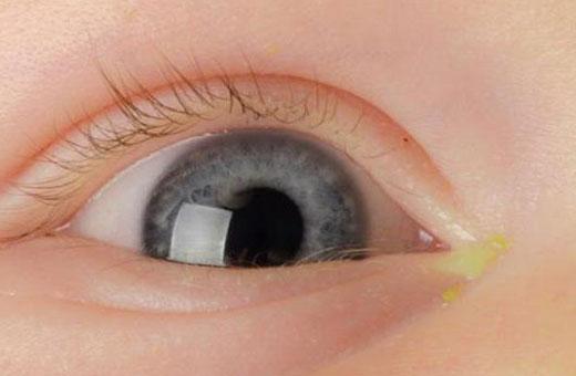 Гноится глаз у новорожденного. Чем лечить дома. Советы врачей, Комаровского