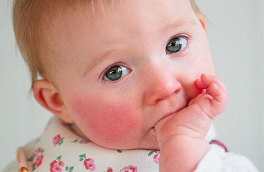 Покраснение вокруг рта у ребенка. Фото, причины и лечение, рацион питания
