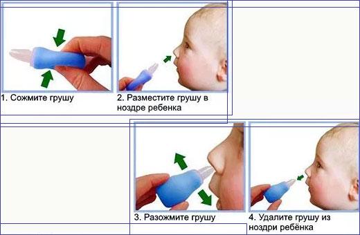 Как почистить нос новорожденному. Капли, физраствор, чем промывать, если заложен