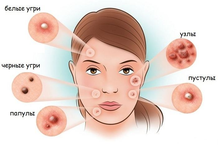 Моллюски на коже у ребенка. Фото, причины и лечение, как избавиться
