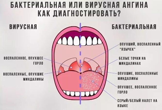 Антибиотики при ангине у детей. Названия. Список препаратов без рецептов