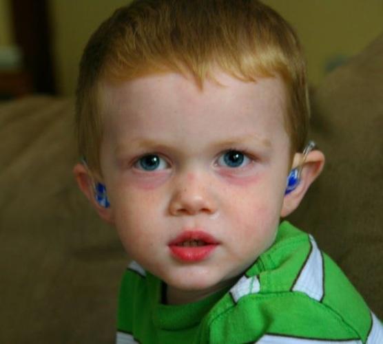 Лейкоциты в моче у ребенка повышены, понижены. Причины у грудничка, норма у девочек, мальчиков. Что делать