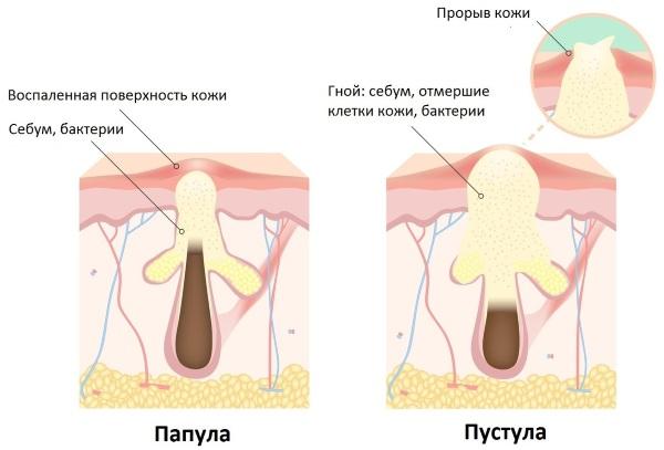 Цветение новорожденных. Фото, признаки, симптомы, лечение, отличие от аллергии