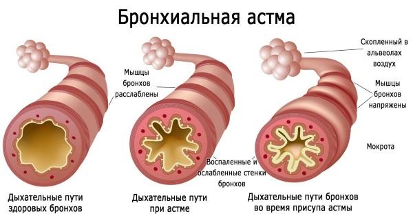 Гинипрал при беременности на 1-2-3 триместре. Для чего назначается капельница, побочные действия