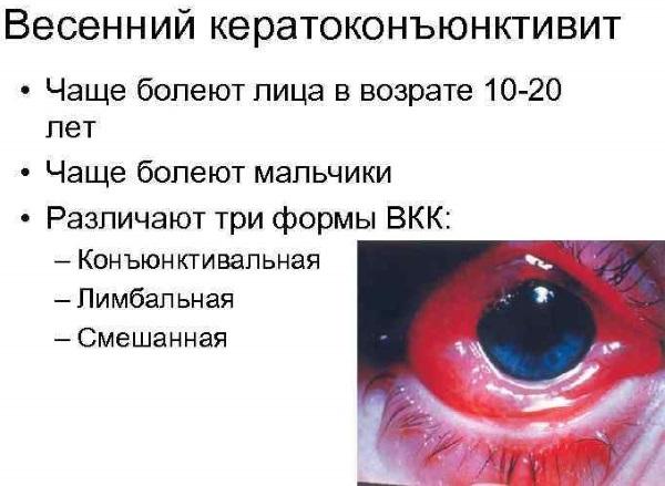 Герпесная инфекция у детей. Симптомы, фото сыпи, лечение