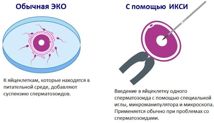 Как делается ЭКО поэтапно для женщин. Что это такое, видео, как подсаживают яйцеклетку