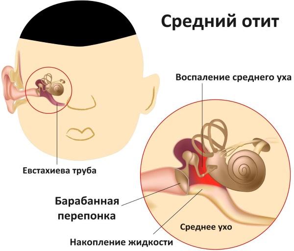 Кривошея у новорожденных. Причины, признаки, фото и лечение