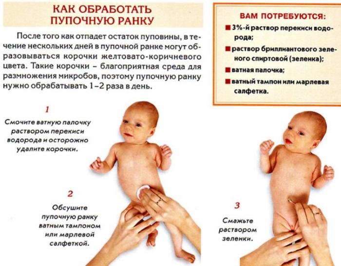 Обработка пупочной ранки у новорожденного. Алгоритм в домашних условиях, роддоме, после отпадения