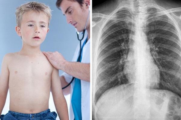 Обструктивный бронхит у ребенка. Симптомы и лечение, клинические рекомендации