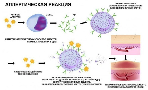 Психосоматика аллергии у детей. Причины, что означает, лечение по таблице Луизы Хей