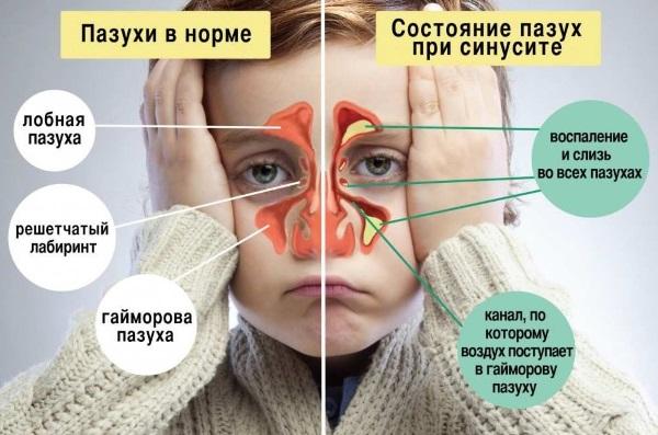 Симптомы краснухи у детей. Фото от начальной стадии до конечной, чем лечить