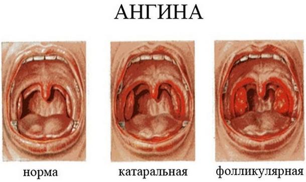 Увеличенные гланды у ребенка, но горло не болит. Фото, лечение, без операции