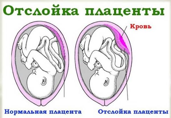 Кровотечение при беременности на ранних сроках. Причины, что делать