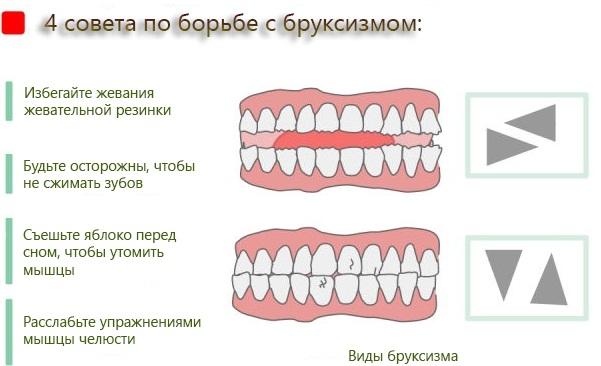Скрежет зубами во сне у ребенка. Причины и лечение, как избавиться, диагностика