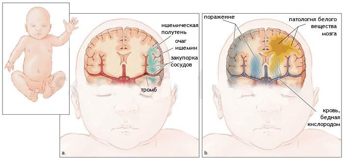 УЗИ головного мозга у грудничка. Норма по месяцам у новорожденных, расшифровка