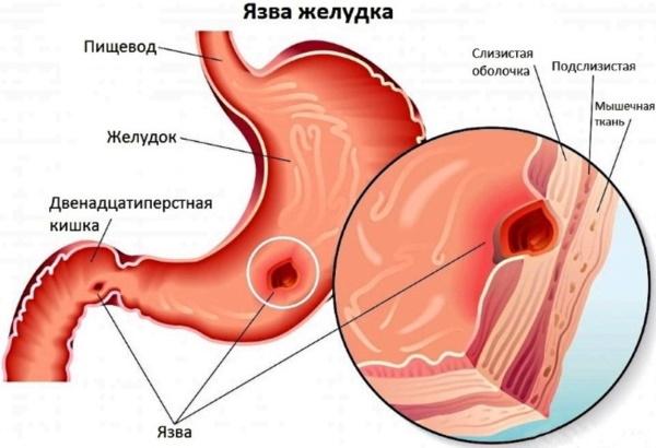 Тотема при беременности. Инструкция, как принимать, отзывы врачей, влияние на ребенка, аналоги