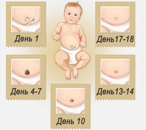 Кровит пупок у новорожденного. Что делать, причины