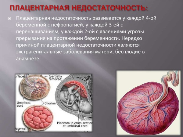 Плацентарная недостаточность при беременности. Что это такое, причины, лечение, последствия, симптомы
