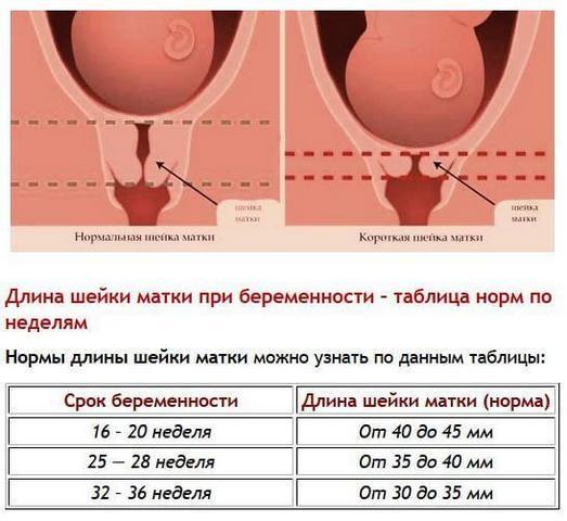 Цервикометрия при беременности. Что это, как делают УЗИ шейки матки